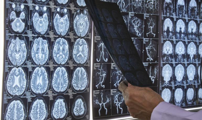 магниторезонансном (МРТ)