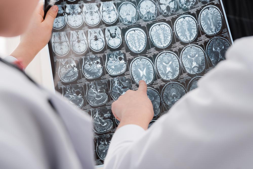 Как определить Альцгеймера