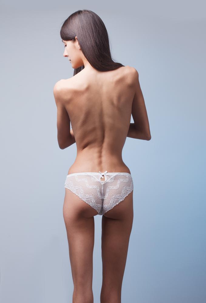 Анорексия фото клиника Равновесие