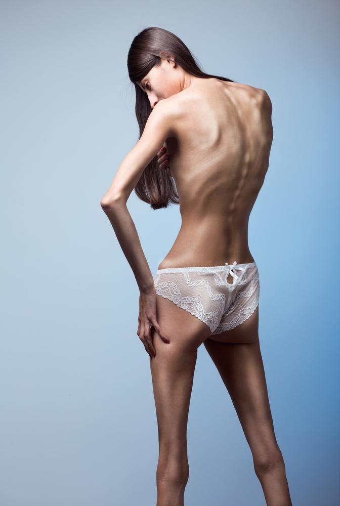 Анорексичная девушка фото клиника Равновесие
