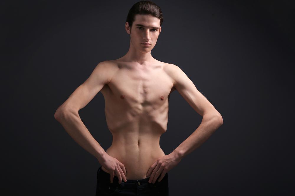 Мужчина больной анорексией фото центр Равновесие