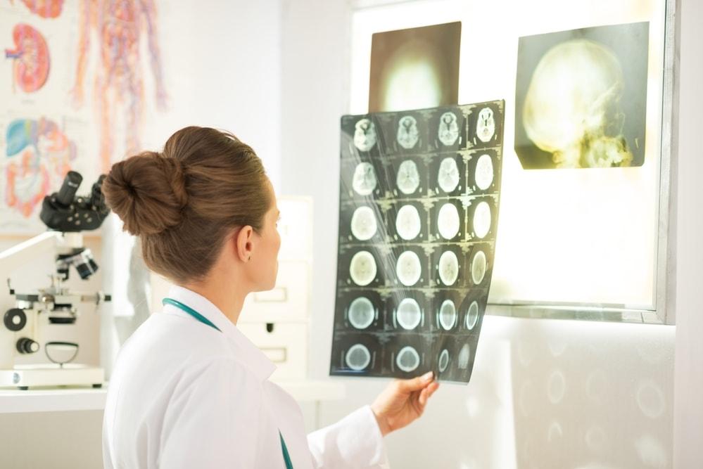 Обследование головного мозга в клинике Равновесие